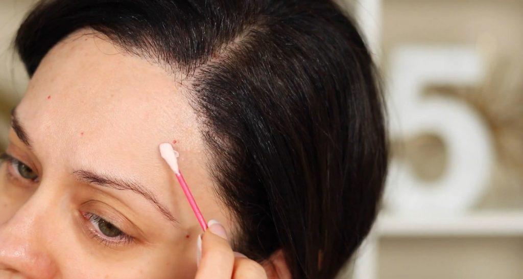 Conoce Chau Chau acné lo nuevo de Yuya, de la mano de Rosy McMichael aplicar el Chau Chau acné